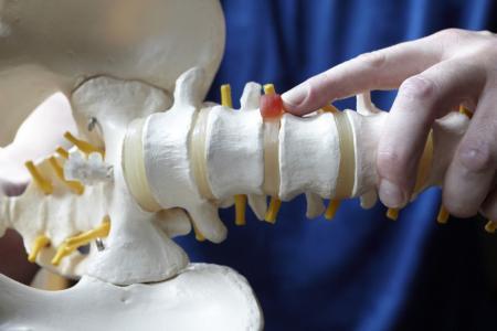 Инновационное лечение грыжи позвоночника в клинике